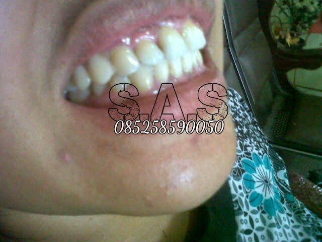 Pasang Gigi Tiruan Lepasan Lepas Sebagian Dental Pemasangan Palsu Harga e7599dec19