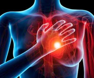 Ciri-Ciri Sakit Jantung