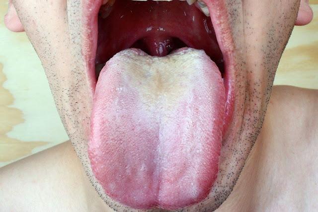 Causes du goût amer dans la bouche