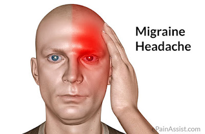 Ayurveda Home Remedies: List of Foods Cure Migraine Headache