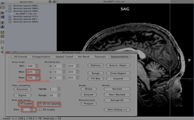 Neuroimaging Made Easy Brainvoyager Qx Tips And Tricks 2