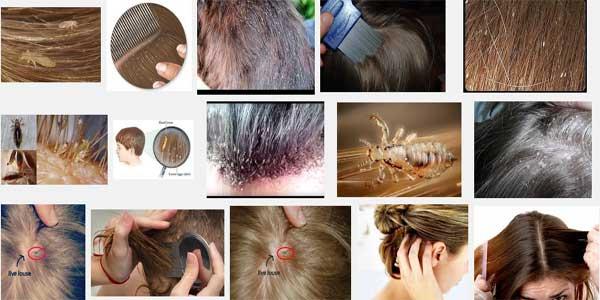 Cara Mudah Menghilangkan Kutu Rambut