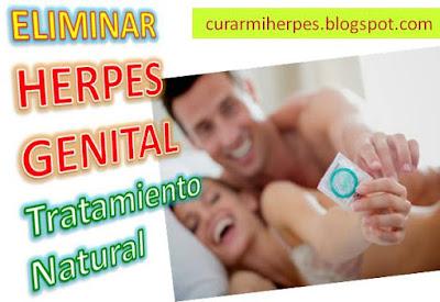 como-curar-los-herpes-genitales-con-medicina-natural-remedios-caseros-tratamientos-naturales