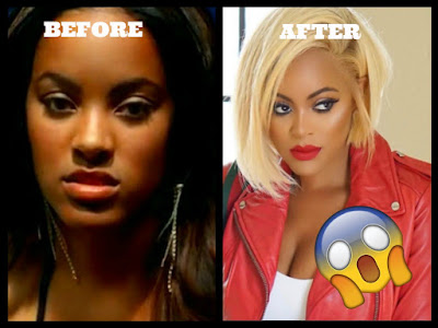 reality tv stars before after plastic surgery