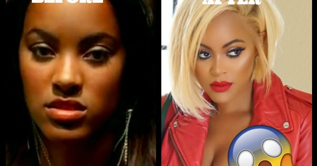 Reality Tv Stars Before And After Plastic Surgery Real