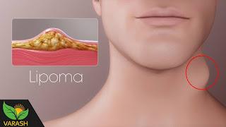 lipoma & cara terapi dengan varash classic natural oil