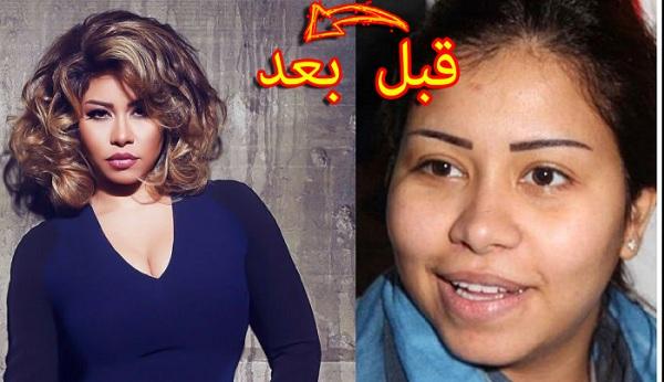 شاهد بالصور...الممثلاث العربيات قبل عملية التجميل !!!$