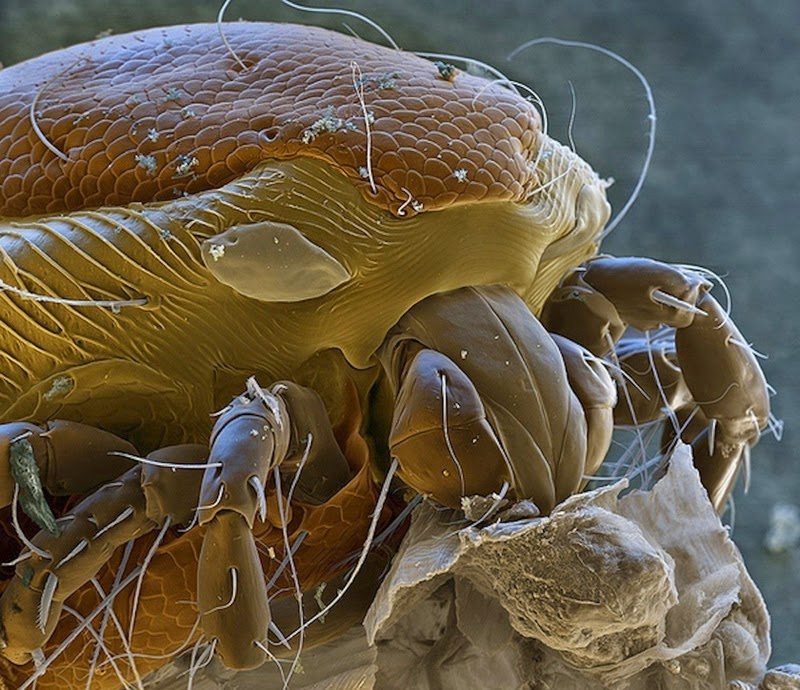16 Terryfying Images From The Microscope - Water mite