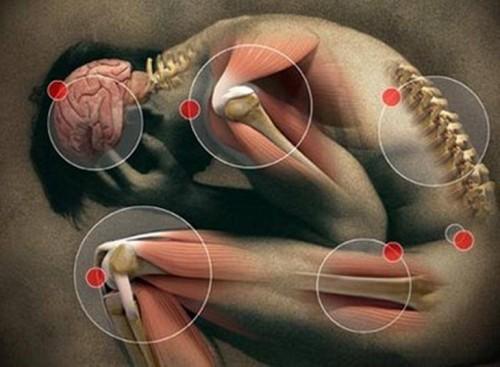 propiedades anti-inflamatorias de la cúrcuma