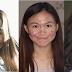 Tidak Perlu Malu, Gadis SABAH Ini Tampil Yakin Dengan Wajah Berjerawat