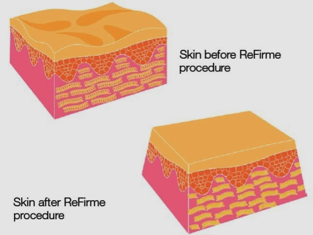 skin after refirme procedure