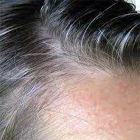 Premature-Gray-Hair-Treatment