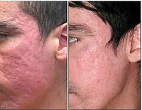 ipl acne antes y despues luz pulsada