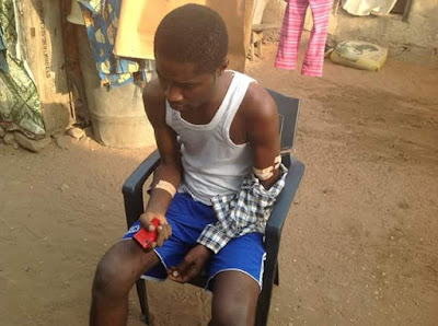 Photos: Unknown gunmen shoots Corps member in Benue state, kill his younger brother