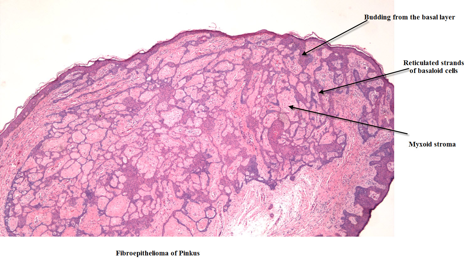 Dermpath Made Simple - Neoplastic: Basal Cell Carcinoma