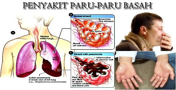 cara mengobati paru paru basah dengan kulit manggis