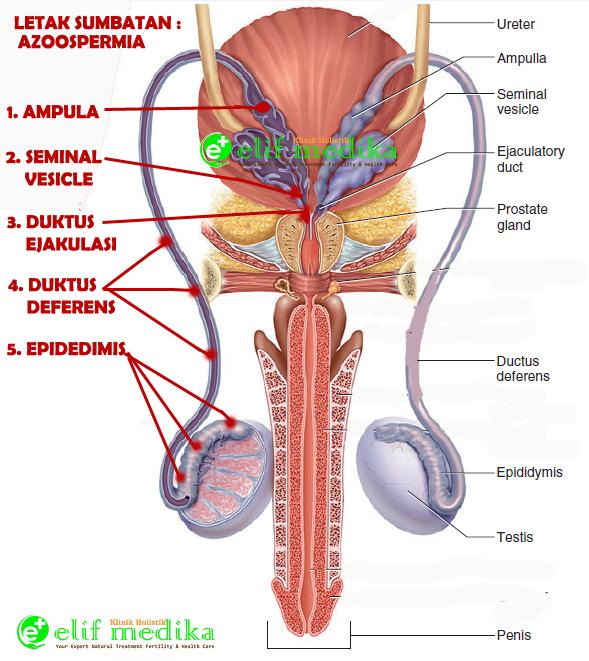 Elifmedika.com : Beberapa kemungkinan letak obstruksi atau sumbatan saluran sperma.