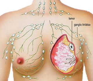 Pengobatan Penyakit Kanker Secara Alami Herbal, Cara Alami Mujarab Mengobati Kanker Payudara, Cara Ampuh Mengobati Kanker Payudara Tanpa Operasi