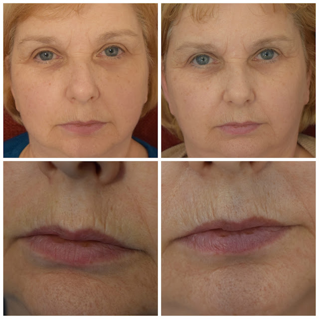LightStim For Wrinkles Before & After