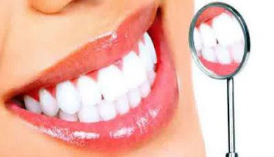 Cara Menghilangkan Flek atau Noda Hitam Pada Gigi