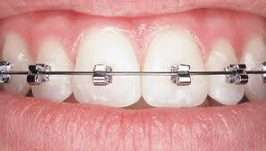 Tiêu chuẩn nào bạn đánh giá nơi niềng răng tối ưu?