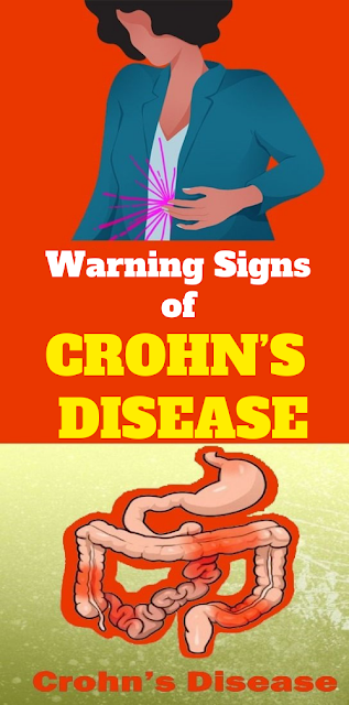 Every Woman Need To Know The Warning Signs of Crohn's Disease