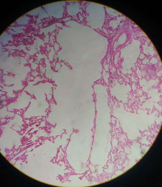 histology slide of lung