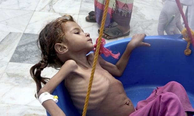Hanya Makan Daun, Begini Kondisi Anak-Anak Yaman