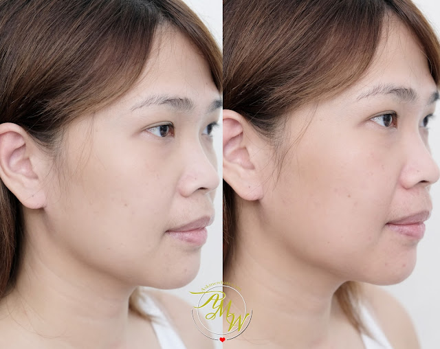 before and after photo of Happy Skin Beauty Anti-Aging Line