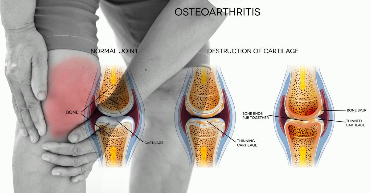 Rheumatoid arthritis diagnosis aafp