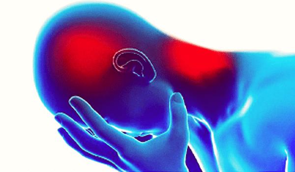 علاج الم الرأس,علاج الصداع,علاج ألم الرأس