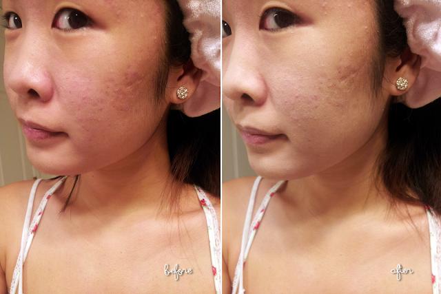 Dry skin makeup