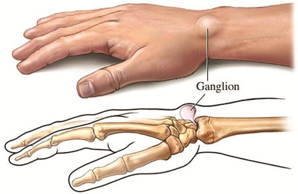 cara menyembuhkan kista ganglion tanpa operasi