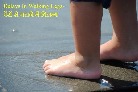 Delays In Walking Legs