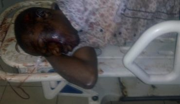 Man Cheats Death after being hit by Dangote Truck