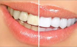 Cara Supaya Gigi Putih Hanya Dalam Waktu 20 Menit Saja