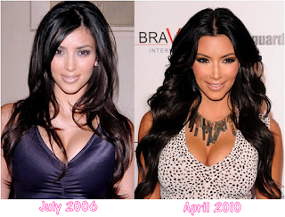 Kim kardashian boob job