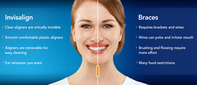 http://toothncare.com/invisible-braces.html