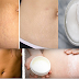 How To Make Dark Stretch Marks Disappear Within 30 Days!