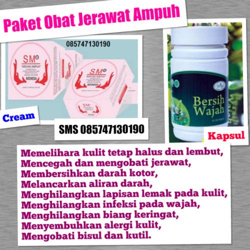 SM Minyak Ampuh: Paket Hemat Obat Jerawat Ampuh Luar Dalam