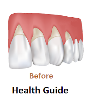 Tips for Healthy Teeth and Gums.