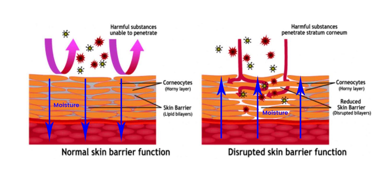 Image result for skin barrier function