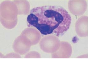 Eosinophilic granulocytes with corpuscular, orange-stained granules.