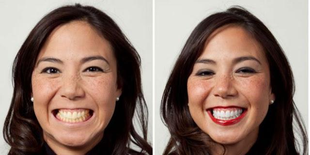 Cara Mudah Hilangkan Gigi Kuning dalam Tempo 3 Menit