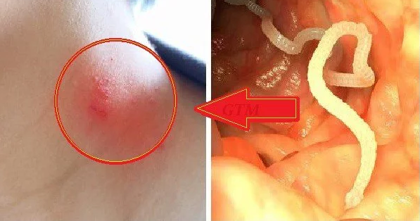 21 Signs That You Have Parasites In The Body