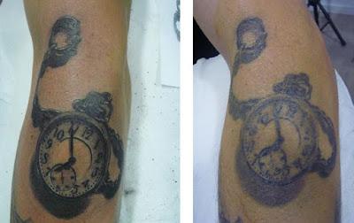 Tatuaje descolorido