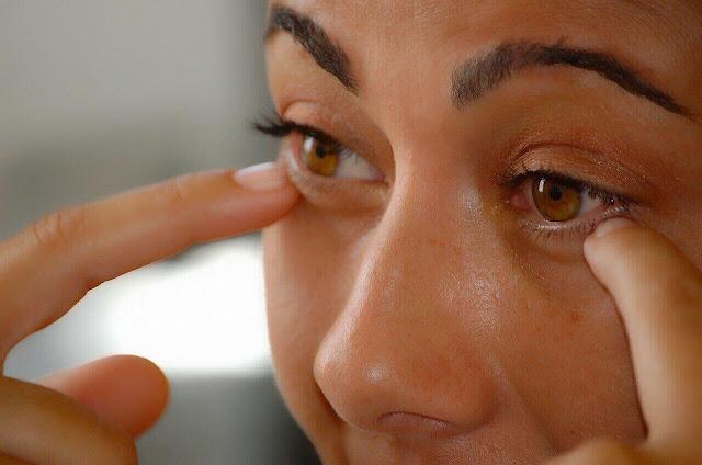 الهالات السوداء تحت العين,اسبابها وعلاجها وطرق التخلص منها نهائيا