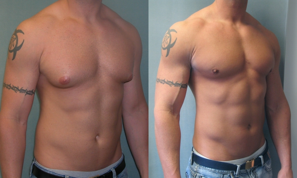 Health First Male Breast Reduction-9885