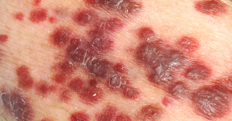 卡波西氏肉瘤_皰疹病毒引起的卡波西氏肉瘤 - 照護線上
