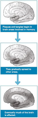 How Alzheimer's spreads in the brain